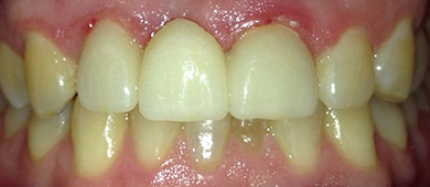 smile after Invisalign