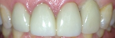 top teeth after porcelain veneers