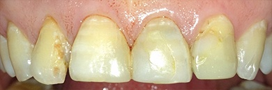 discolored top teeth before procedure
