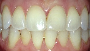 white, clean teeth after procedure