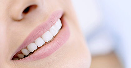 Closeup of smile with flawless porcelain veneers