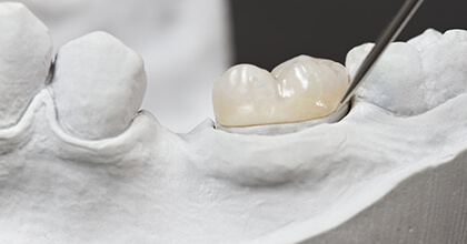 Model of tooth repaired with dental crown