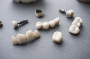 Dental implants and crowns on a desk.